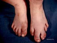 акромегалия симптомы и лечение