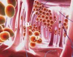 лечение целлюлита, симптомы