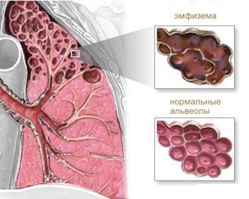 эмфизема легких фото
