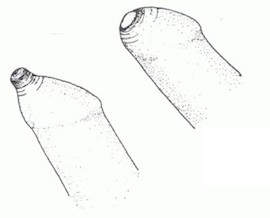 фимоз, лечение