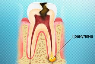 гранулема зуба фото