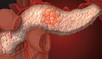 панкреатит хронический острый