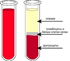 плазмаферез крови