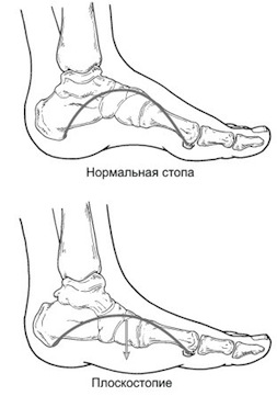 плоскостопие лечение симптомы