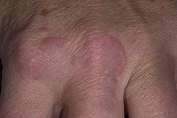 ревматические гранулемы
