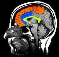 шизофрения симптомы признаки лечение