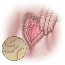 сифилис у женщин