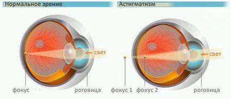 astigmatizm_3