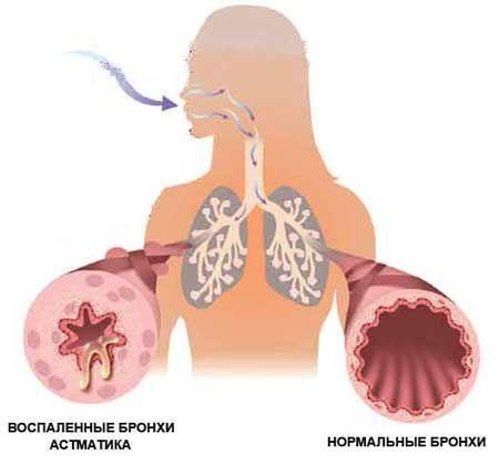 bronxialnaya-astma_1