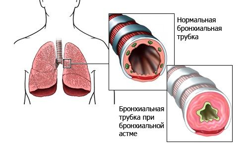 bronxialnaya-astma_2