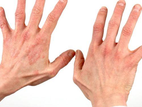 dermatit_4