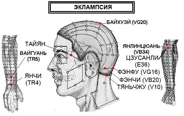 eklampsiya_2