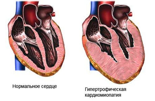 kardiomiopatiya_1