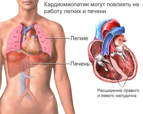 kardiomiopatiya_4