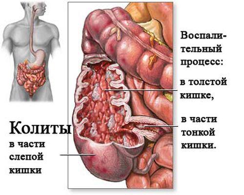 kolit_3
