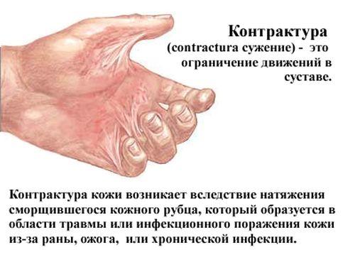 kontraktura_3