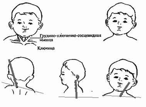 krivosheya_3