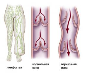 онормальная и варикозная вены