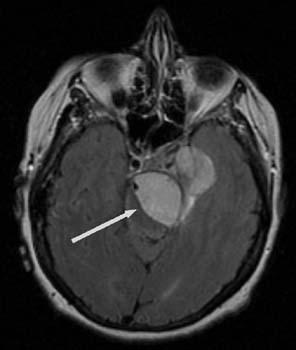 meningioma_1
