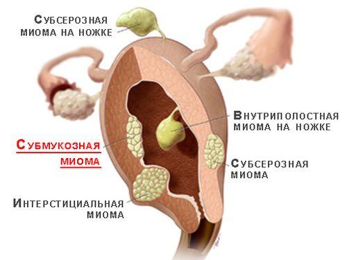 mioma-matki_2