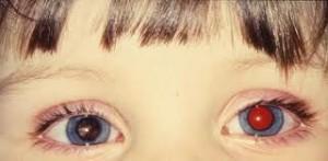 злокачественная опухоль в зоне сетчатки глаза