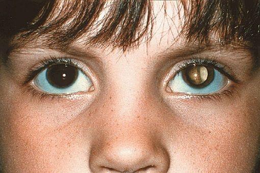 retinoblastoma_4