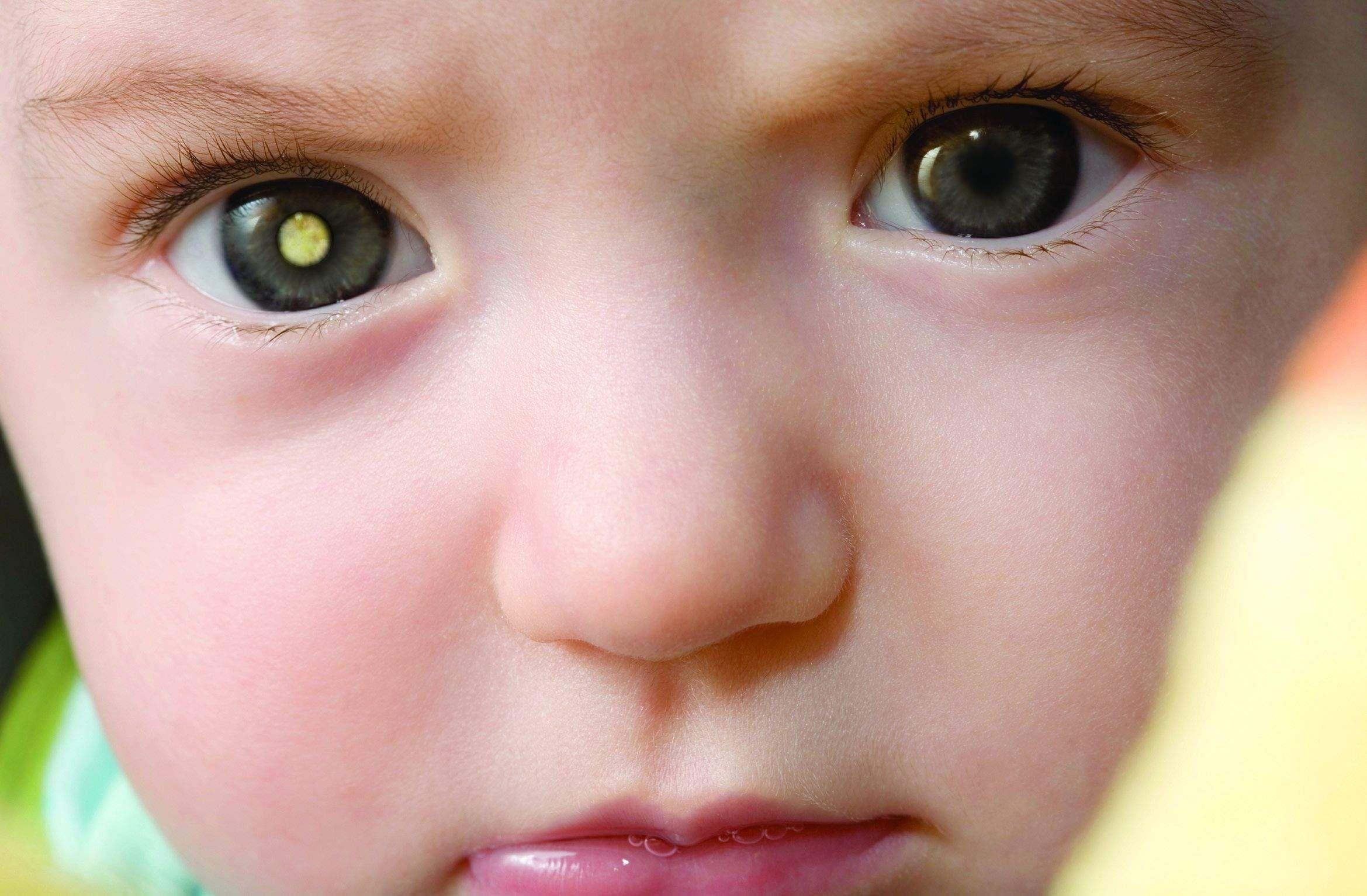 retinoblastoma_5
