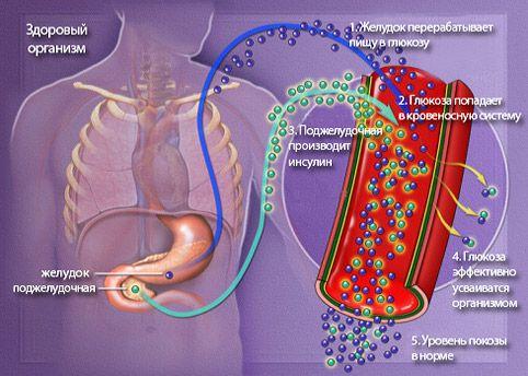 saxarniy-diabet2