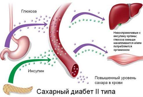 saxarniy-diabet3