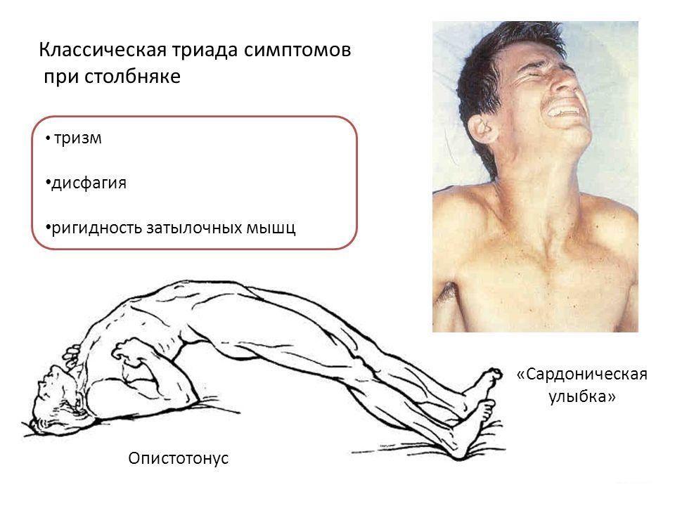stolbniyk_3