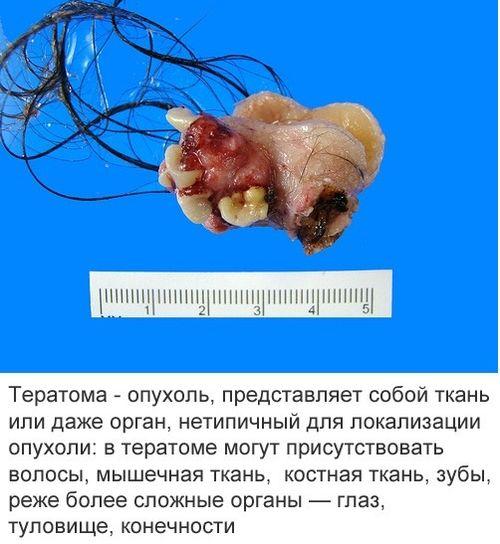 teratoma_3