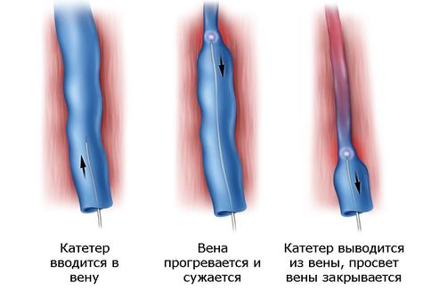 varikoz-ven_7