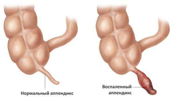 признаки аппендицита у женщин