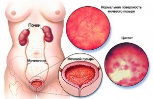 цистит у женщин симптомы