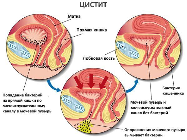 цистит у женщин лечение