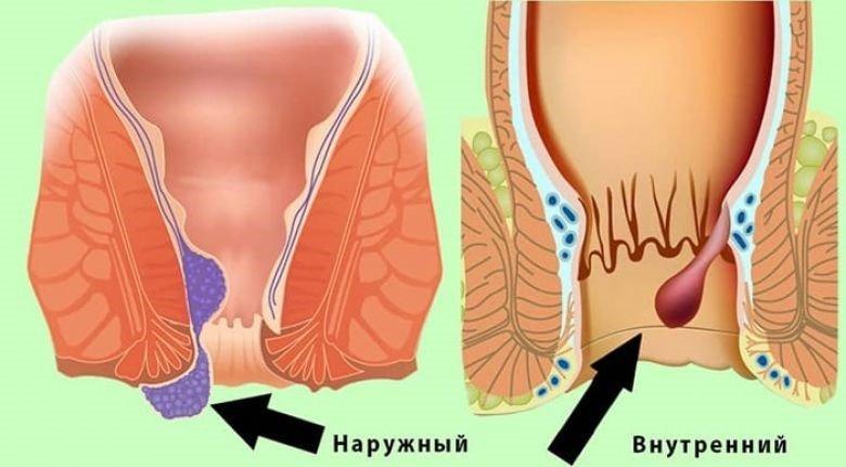 геморрой у женщин симптомы и лечение