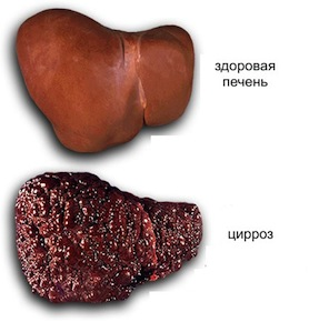 очистка крови от холестерина