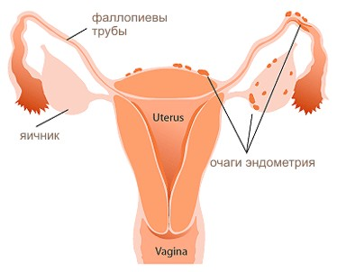 Эндометриоз матки и беременность