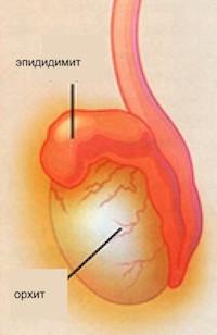 Эпидидимит - симптомы, лечение эпидидимита