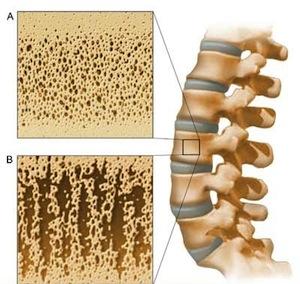 остеопороз лечение симптомы
