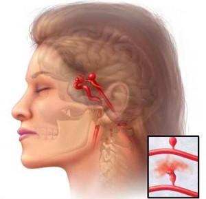 механизм разрыва аневризмы сосудов головного мозга