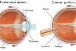 astigmatizm_2