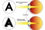 astigmatizm_4