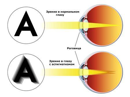 Аутотренинг для восстановления зрение