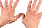 Дерматит - виды и формы, симптомы и лечение дерматита