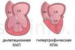 kardiomiopatiya_2