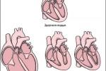 kardiomiopatiya_3
