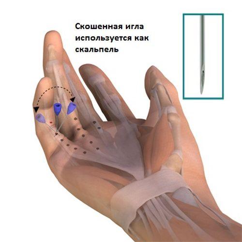 Степени контрактуры сустава может ли глина быть причиной - отложение солей в суставах