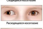 kosoglazie_2