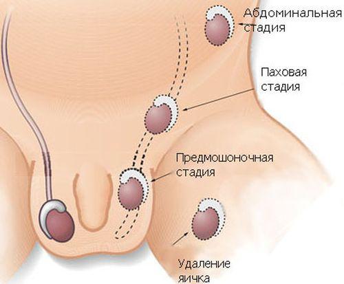 Как убрать боль в голове при гайморите